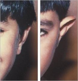 ניתוח אוזניים